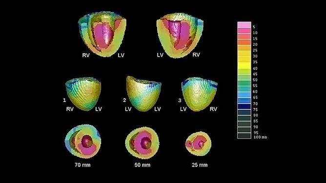 Simulation de systèmes biologiques